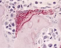 骨を破壊(吸収)する破骨細胞